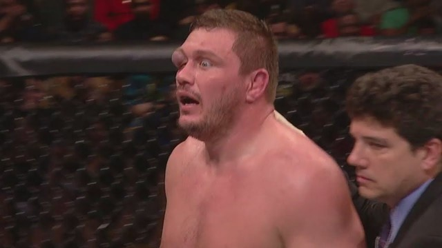 Matt Mitrione's eye is ridiculously gross